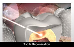 Tooth Regeneration: