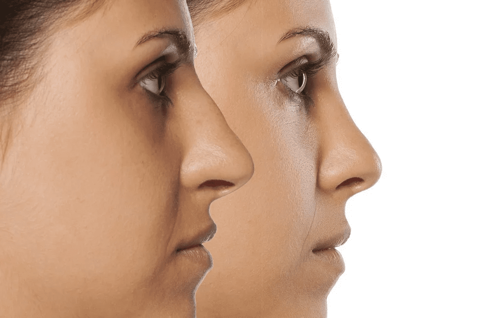 All You Need To Know About Cosmetic Nose Surgery