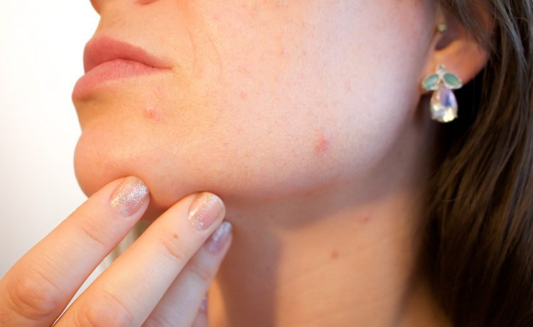 Symptoms And Causes Of Hormonal Acne