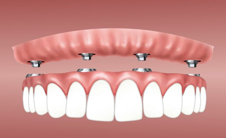 Implant-Supported Dentures Last