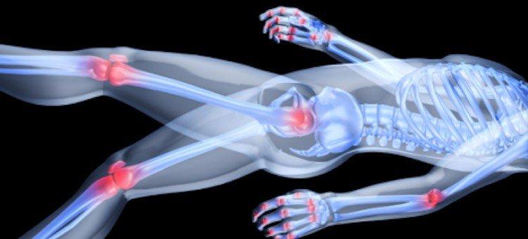 Less Arthritis Pain