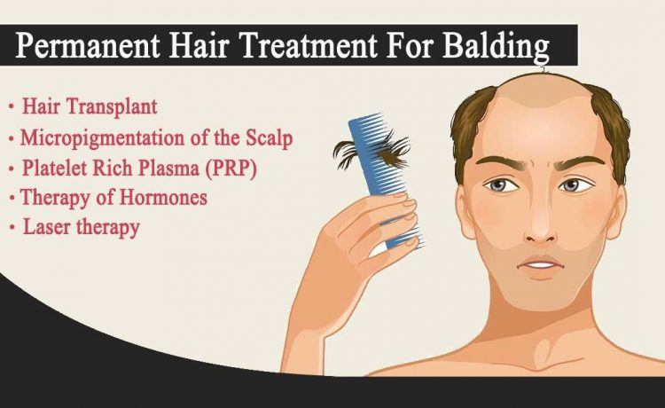What Causes Baldness, Permanent Treatment For Balding