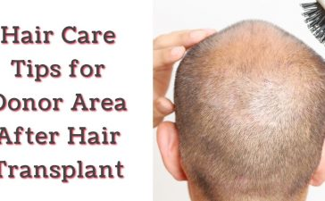 Hair Care Tips for Donor Area