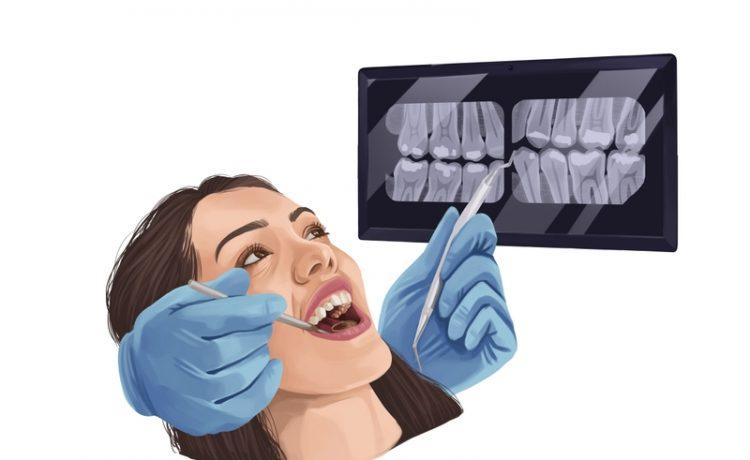 Getting Dental Crowns