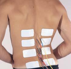 electric stimulation